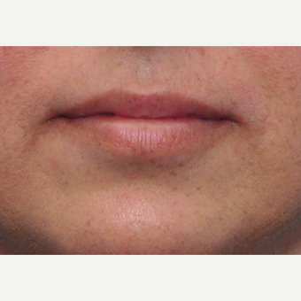 41 year old woman immediately after lip augmentation with Restylane before 3825536