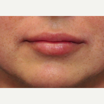 41 year old woman immediately after lip augmentation with Restylane after 3825536