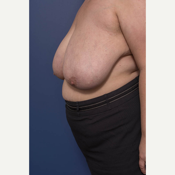 25-34 year old woman treated with Breast Reduction before 3734570