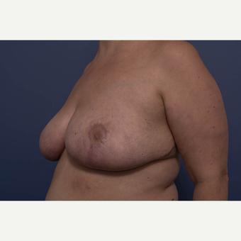 25-34 year old woman treated with Breast Reduction after 3734570