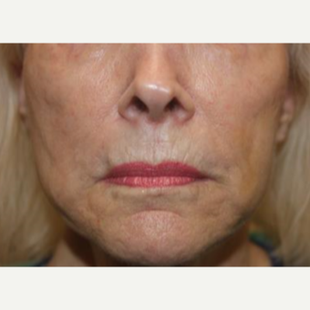 65-74 year old woman treated with Liquid Facelift after 3241087