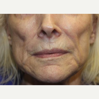 65-74 year old woman treated with Liquid Facelift before 3241087
