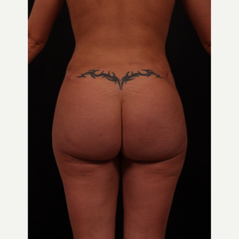 25-34 year old woman treated with Brazilian Butt Lift after 3649794