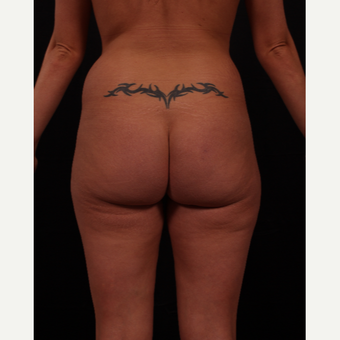 25-34 year old woman treated with Brazilian Butt Lift before 3649794