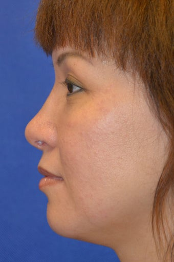 Asian Rhinoplasty, Augmentation with Cartilage