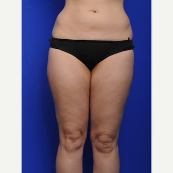 25-34 year old woman treated with Liposuction after 3200486
