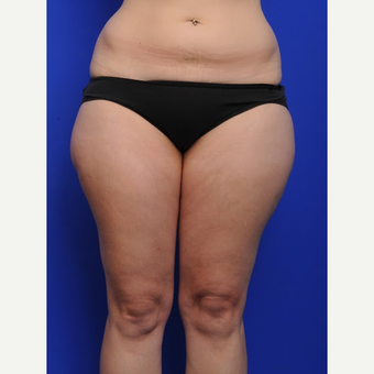 25-34 year old woman treated with Liposuction before 3200486