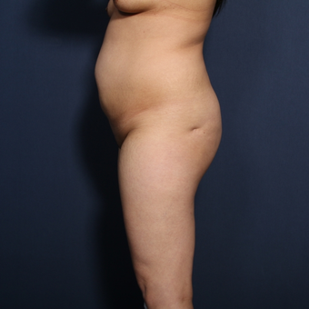 35-44 year old woman treated with Tummy Tuck (view 2 of 2) before 3129171
