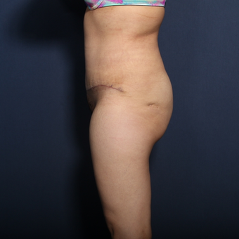 35-44 year old woman treated with Tummy Tuck (view 2 of 2) after 3129171