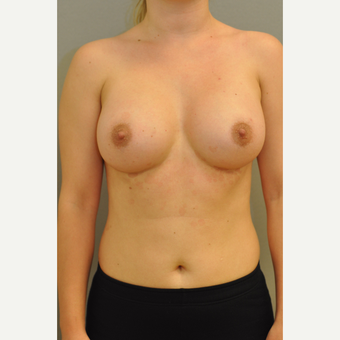 25-34 year old woman treated with Breast Implants after 3843065