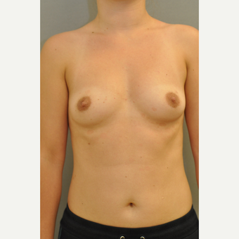 25-34 year old woman treated with Breast Implants before 3843065