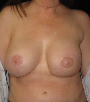 48 year old female left breast reconstruction after other surgeons multiple failed reconstruction.  after 1472291