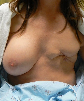 48 year old female left breast reconstruction after other surgeons multiple failed reconstruction.  before 1472291