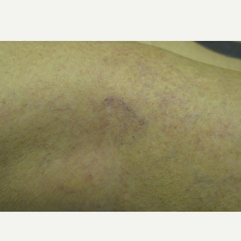 45-54 year old woman treated with Sclerotherapy after 2203996