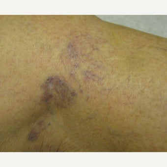 45-54 year old woman treated with Sclerotherapy before 2203996