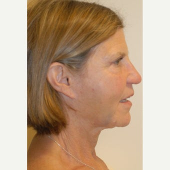 45-54 year old woman treated with Liquid Facelift after 2413251