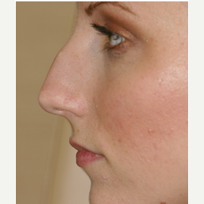 25-34 year old woman treated with Rhinoplasty before 3088990