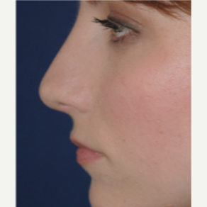 25-34 year old woman treated with Rhinoplasty after 3088990