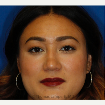 25-34 year old woman treated with Asian Rhinoplasty after 3703209
