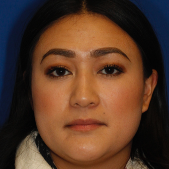 25-34 year old woman treated with Asian Rhinoplasty before 3703209