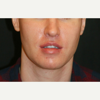 25-34 year old man treated with Jaw Reduction after 3648676