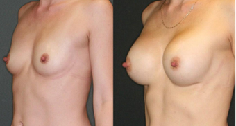 Mother, mid 30s, breast augmentation with 330cc anatomical implants after 1050497