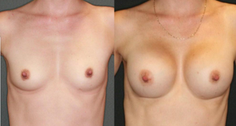 Mother, mid 30s, breast augmentation with 330cc anatomical implants before 1050497