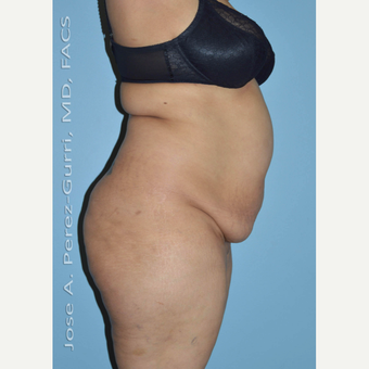 45-54 year old woman treated with Tummy Tuck before 3691163