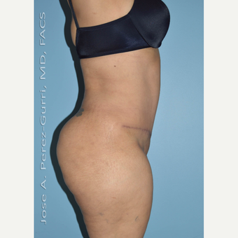 45-54 year old woman treated with Tummy Tuck after 3691163