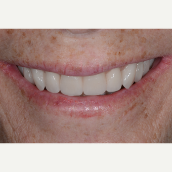 55-64 year old woman treated with All-on-4 Dental Implants after 3474219