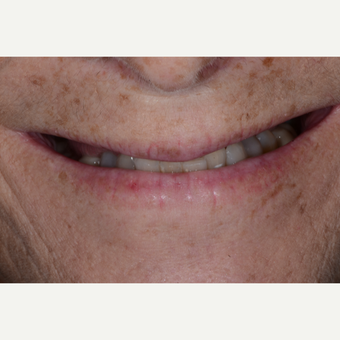 55-64 year old woman treated with All-on-4 Dental Implants before 3474219
