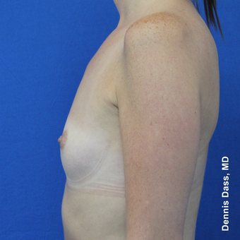 25-34 year old woman treated with Sientra Breast Implants before 3353087