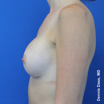 25-34 year old woman treated with Sientra Breast Implants after 3353087