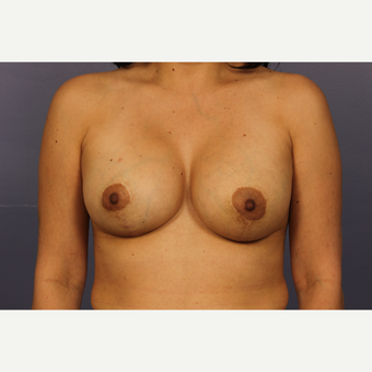 35-44 year old woman treated with Breast Lift with Implants after 3110576