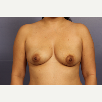 35-44 year old woman treated with Breast Lift with Implants before 3110576