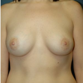 Breast Augmentation after 3720758