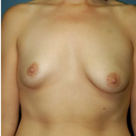 Breast Augmentation before 3720758