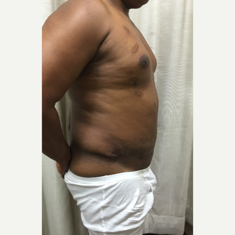 35-44 year old man treated with Male Tummy Tuck after 3316855