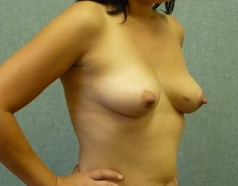 Breast augmentation with fat transfer 607417