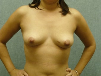 Breast augmentation with fat transfer before 607417