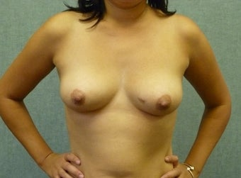 Breast augmentation with fat transfer after 607417