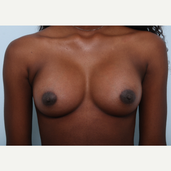 Breast Augmentation after 3508084