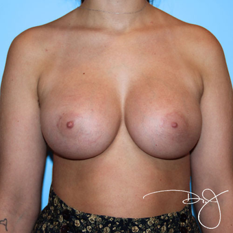 Breast Implants after 3038250