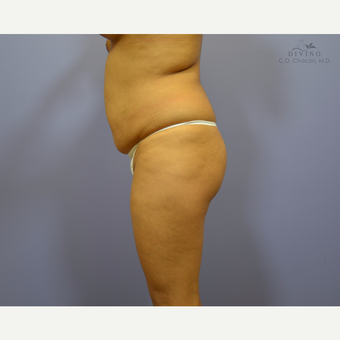 18-24 year old woman treated with Brazilian Butt Lift before 3329247