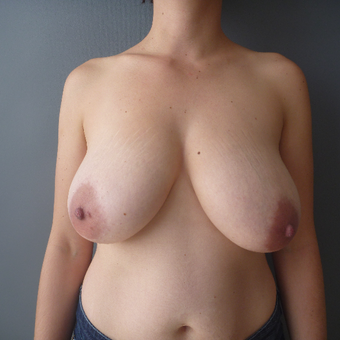 25-34 year old woman treated with Breast Reduction before 3266376