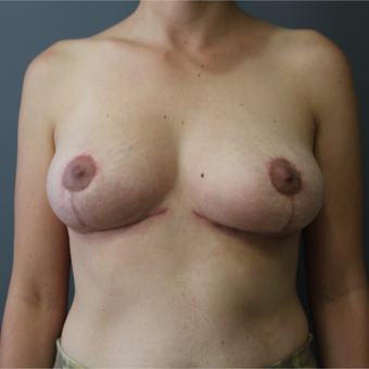 25-34 year old woman treated with Breast Reduction after 3266376