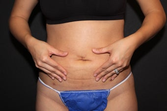 Laser Liposuction - Abdomen after 1058356