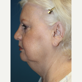 65-74 year old woman treated with Facelift before 3701999