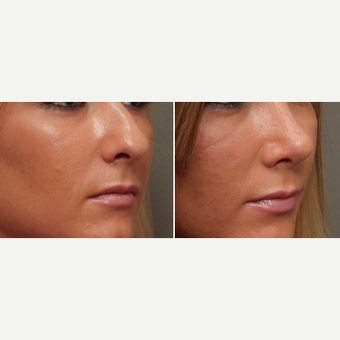 18-24 year old woman treated with Rhinoplasty before 3033614