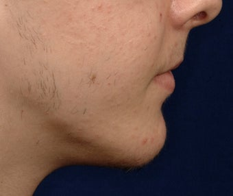 18 Year Old Male Treated For A Small Chin after 1233390